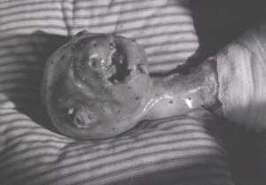 Eraserhead6-1-